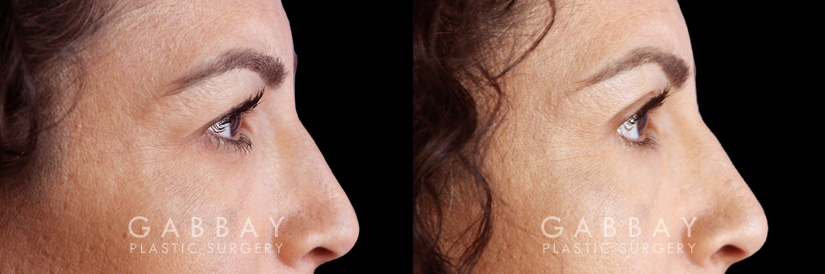 Patient 01 Right Side View Blepharoplasty Gabbay Plastic Surgery