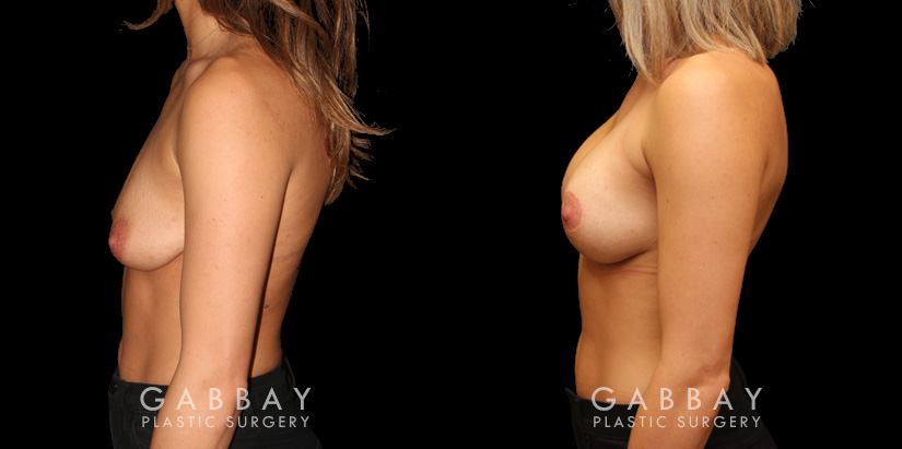 Patient 04 Left Side View Mastopexy with Breast Augmentation Gabbay Plastic Surgery