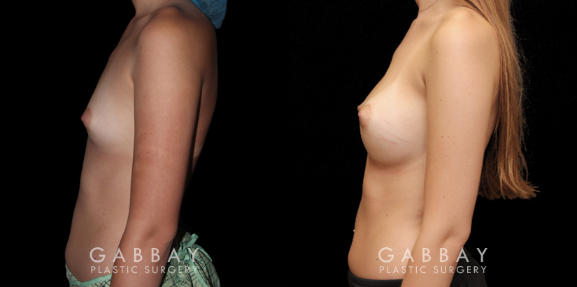 Patient 06 Left Side View Breast Augmentation Silicone Implants Gabbay Plastic Surgery