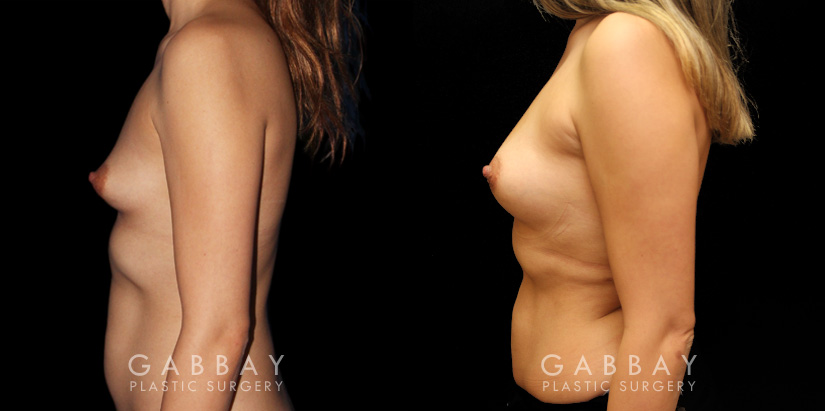 Patient 01 Left Side View Breast Fat Grafting Gabbay Plastic Surgery