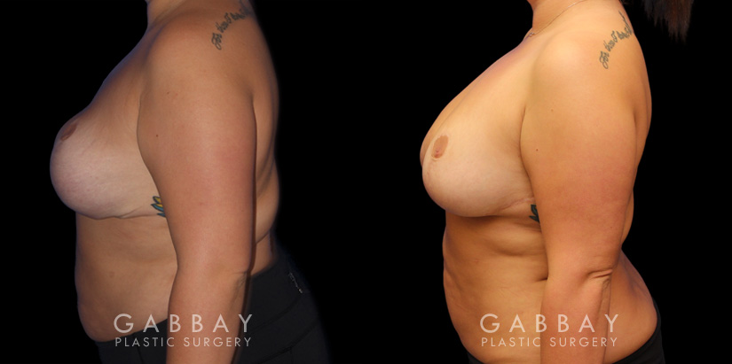 Patient 02 Left Side View Breast Fat Grafting Gabbay Plastic Surgery
