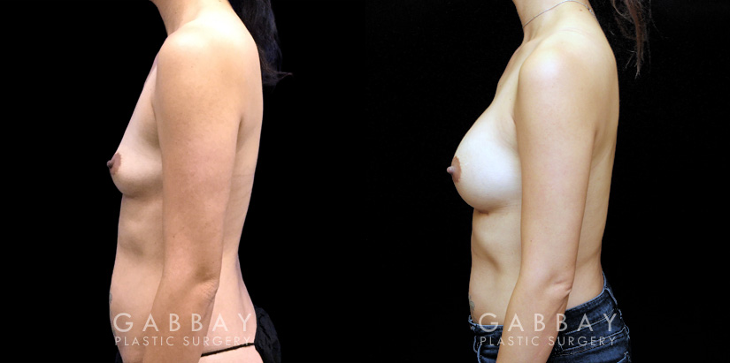 Patient 03 Left Side View Breast Augmentation Silicone Implants Gabbay Plastic Surgery