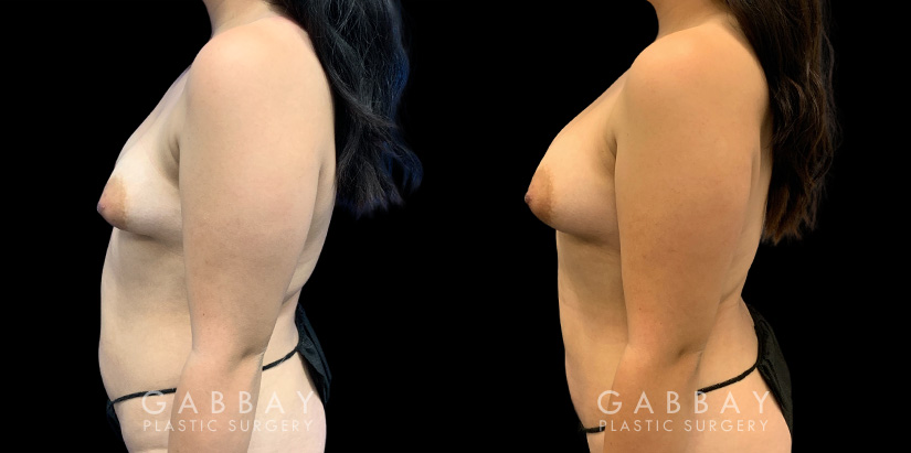 Patient 04 Left Side View Breast Fat Grafting Gabbay Plastic Surgery