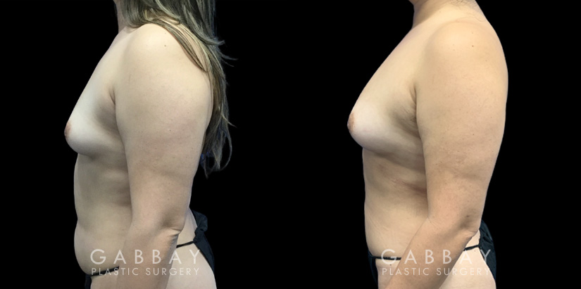 Patient 05 Left Side View Breast Fat Grafting Gabbay Plastic Surgery