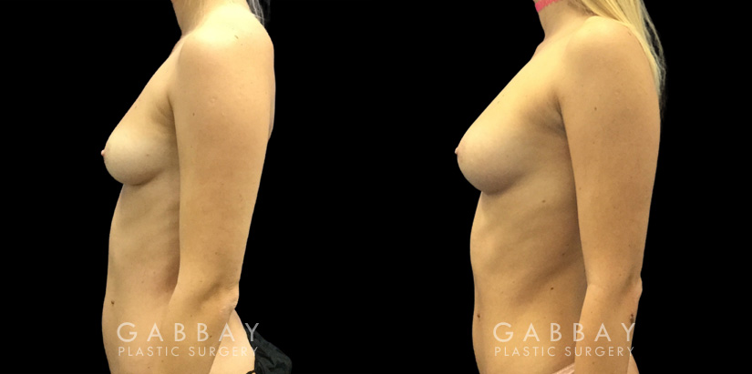 Patient 06 Left Side View Breast Fat Grafting Gabbay Plastic Surgery