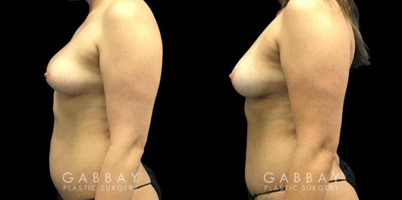 Patient 07 Left Side View Breast Fat Grafting Gabbay Plastic Surgery