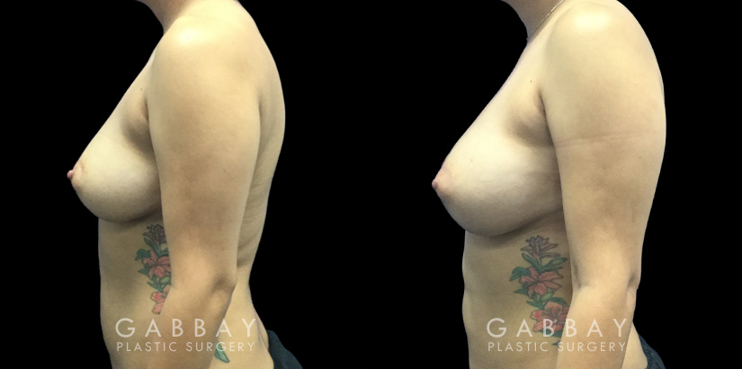 Patient 08 Left Side View Breast Fat Grafting Gabbay Plastic Surgery