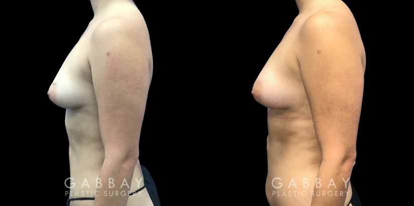 Patient 09 Left Side View Breast Fat Grafting Gabbay Plastic Surgery