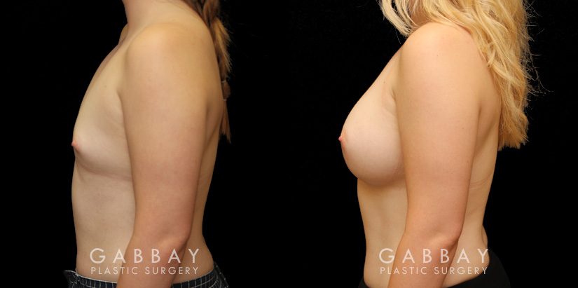 Patient 10 Left Side View Breast Augmentation with Silicone Implants Gabbay Plastic Surgery