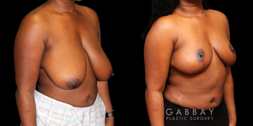 Patient 01 3/4th Right Side View Breast Reduction with Lift Gabbay Plastic Surgery