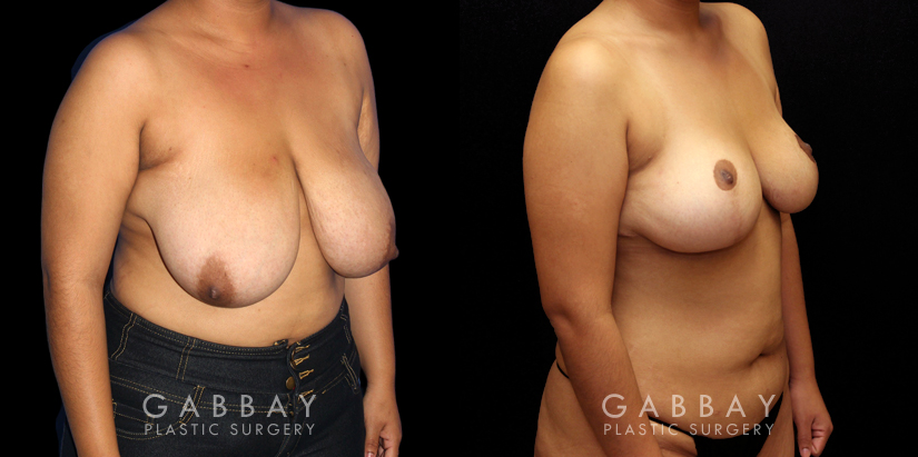 Patient 03 3/4th Right Side View Mastopexy Gabbay Plastic Surgery
