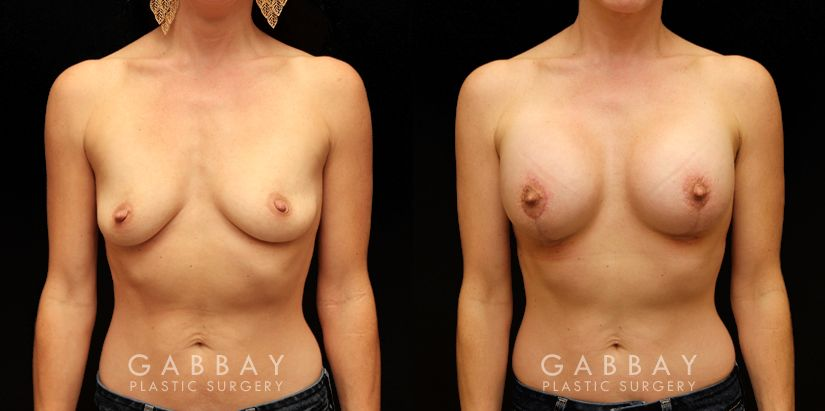Patient 03 Front View Breast Lift Before and After Gabbay Plastic Surgery