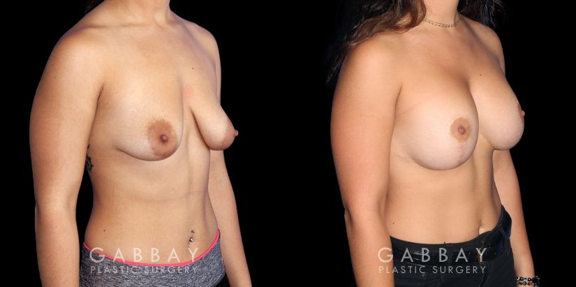 Patient 01 3/4th Right Side View Breast Lift Before and After Gabbay Plastic Surgery