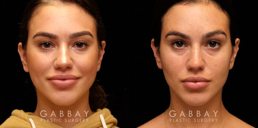 Patient 01 Front View Buccal Fat Removal Before and After Gabbay Plastic Surgery