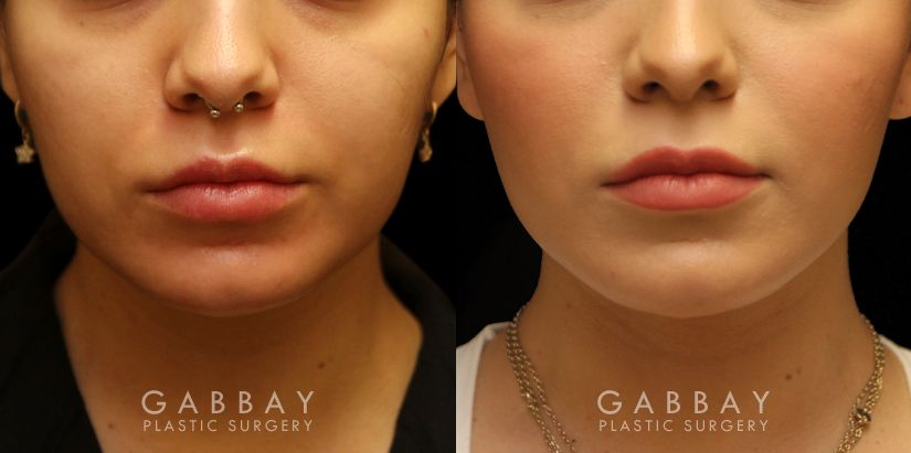 Patient 03 Front View Buccal Fat Removal Before and After Gabbay Plastic Surgery