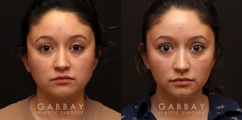 Patient 02 Front View Buccal Fat Removal Before and After Gabbay Plastic Surgery