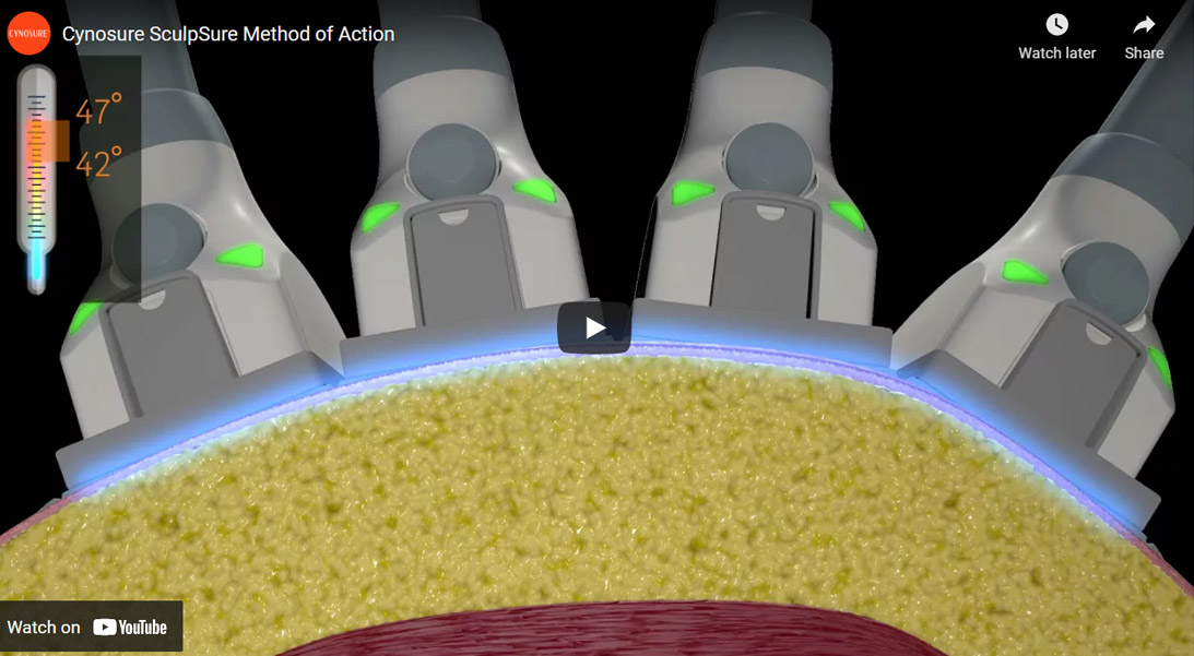 Image of Cynosure SculpSure Method of Action Click to See Video