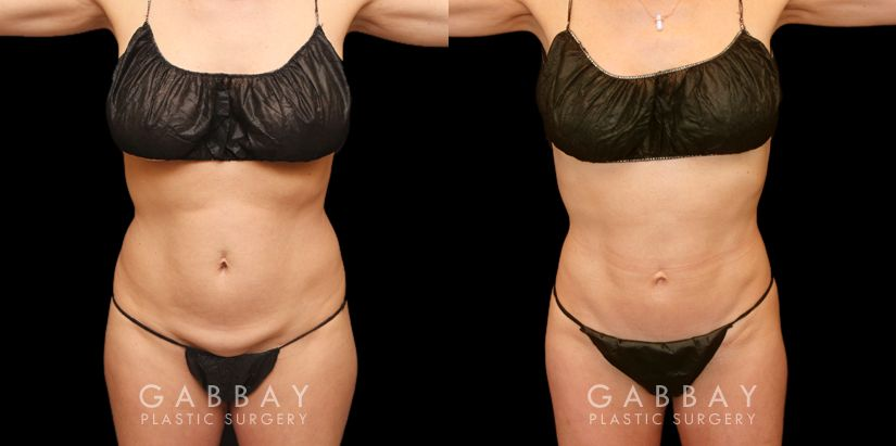 Patient 05 Front View Tummy Tuck Before and After Gabbay Plastic Surgery