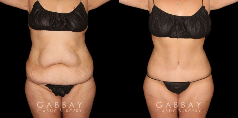 Patient 01 Front View Tummy Tuck Before and After Gabbay Plastic Surgery