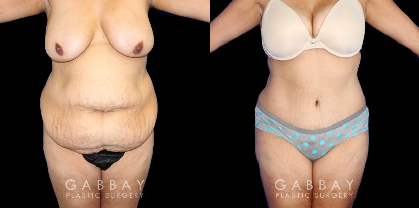 Patient 04 Front View Tummy Tuck Before and After Gabbay Plastic Surgery