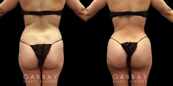 Patient 01 Back View Brazilian Butt Lift Before and After Gabbay Plastic Surgery