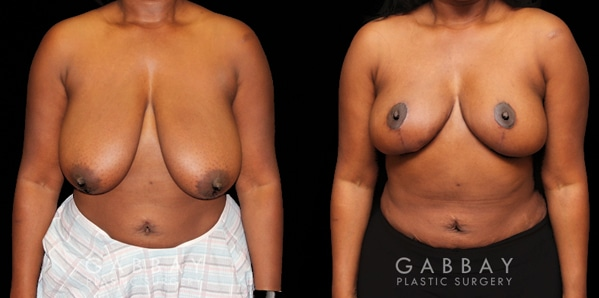 Patient 01 Front View Breast Reduction Before and After Gabbay Plastic Surgery