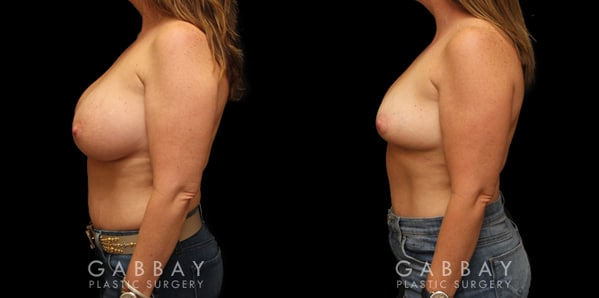 Patient 01 Front View Breast Implant Removal Before and After Gabbay Plastic Surgery