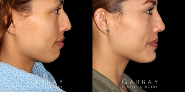Patient 01 Right Side View Chin Implant Before and After Gabbay Plastic Surgery