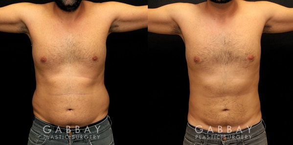 Patient 01 Front View Gynecomastia Before and After Gabbay Plastic Surgery