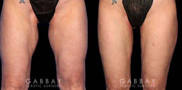 Patient 01 Front View Thigh Lift Before and After Gabbay Plastic Surgery